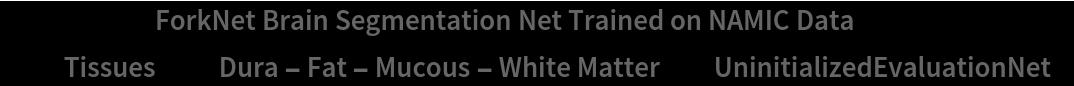 """NetModel[{""""ForkNet Brain Segmentation Net Trained on NAMIC Data"""", """"Tissues"""" -> """"Dura - Fat - Mucous - White Matter""""}, \ """"UninitializedEvaluationNet""""]"""